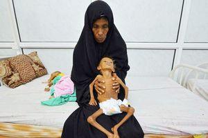 Yemen đối mặt nguy cơ nạn đói tồi tệ nhất lịch sử nhân loại