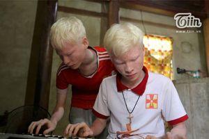 Nghị lực cặp song sinh bạch tạng ở Hà Tĩnh: Dang dở việc học, bán đàn vì nghèo vẫn lạc quan
