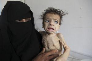Nạn đói kinh hoàng tại Yemen: Ám ảnh những em bé 'da bọc xương'