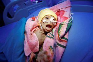 Sự sống bị bào mòn tại Yemen sau 3 năm nội chiến