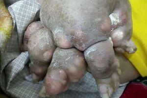 Sốc với bàn chân biến dạng do gout to như chân gấu