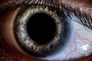 60 ca chấn thương, mù mắt do dây ràng bằng thun