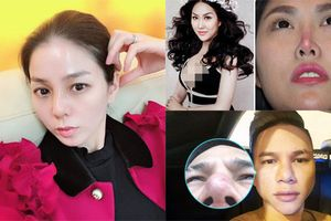 Đâu chỉ Lệ Quyên, nhiều sao Việt cũng gặp họa vì nâng mũi