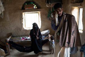 Yemen và bi kịch của cuộc chiến Ả-rập Xê-út