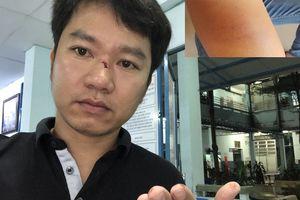 Người dân 'tố' bị người lạ hành hung khi làm việc với CSGT Hàng Xanh