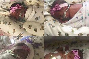 Mỗi lần siêu âm, người phụ nữ này lại phát hiện thêm một em bé trong bụng