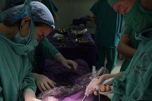 Cắt bỏ khối u buồng trứng gần 20cm trong cơ thể nữ bệnh nhân ở Quảng Ninh