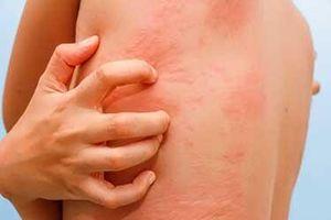 Dị ứng và tổng hợp các cách chữa trị dị ứng an toàn, hiệu quả