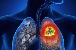 Ung thư phổi: 2 dấu hiệu nhận biết sớm nhất nhiều người hay bỏ qua