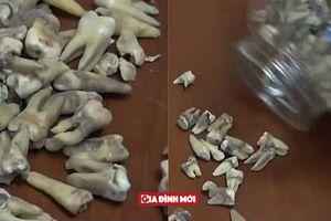 Công nhân phát hoảng khi phát hiện 1.000 chiếc răng người được chôn trong tường
