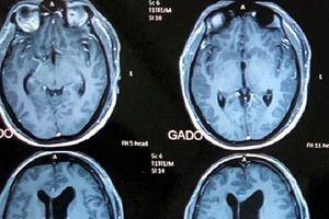 Hơn 6 giờ căng thẳng cứu sống bệnh nhân bị u thần kinh khổng lồ