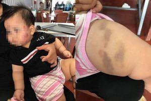 Phụ huynh bực tức tố con trai 11 tháng tuổi bị cắn khắp mặt, bầm tím khắp người sau khi đi gửi trẻ