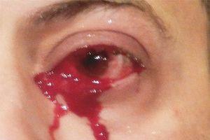 Căn bệnh lạ khiến người đàn ông 52 tuổi liên tục khóc ra máu