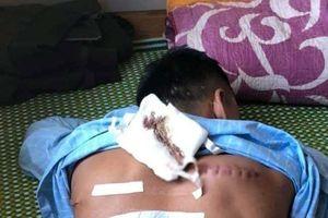 Điều tra vụ 1 nam thanh niên bị truy sát phải nhập viện