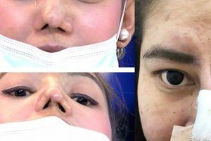 Loạt thảm họa mũi hỏng ở 'thiên đường thẩm mỹ' Thái Lan