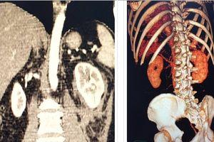 Cấp cứu thành công bệnh nhân bị đứt mạch máu thận mà không cần phẫu thuật