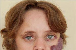 Clip: Người phụ nữ bị coi như 'quái vật', sống khổ sở với vết chàm trên mặt