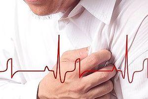 Trẻ hóa tuổi mắc bệnh tim mạch tại Việt Nam