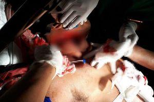 Vụ cuồng ghen ở Củ Chi: Hung thủ ra tay tàn độc với em vợ