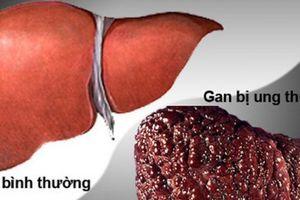 Ung thư gan: 4 dấu hiệu nguy hiểm 'chết người' nhiều người thường bỏ qua