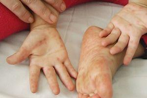 Đắk Lắk: Một bệnh nhi tử vong vì bệnh tay chân miệng