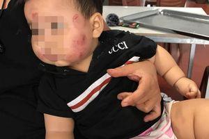 Bé trai bầm tím mặt, đùi sau khi đi học: Cô giáo phải nghỉ việc, trường ngừng hoạt động