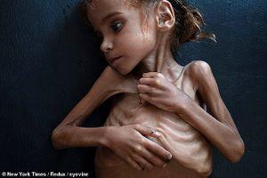 Hình ảnh trẻ em da bọc xương gây chấn động vì nạn đói thảm khốc ở Yemen
