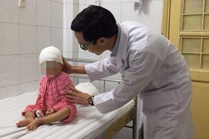 Bé gái 19 tháng tuổi mắc dị dạng hộp sọ hiếm gặp