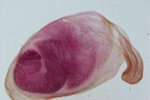 Ổ bệnh sán dây lợn ở Bình Phước