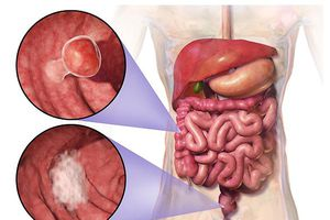 Ung thư di căn vì uống thuốc nam