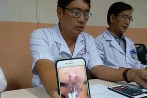 Nữ sinh ở Sài Gòn hoại tử mất 2/3 mũi sau tiêm chất làm đầy nâng mũi