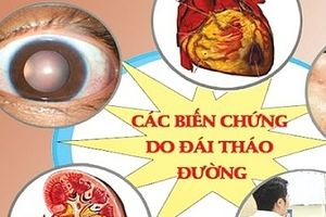 Bệnh đái tháo đường tại Hà Nội ở mức báo động