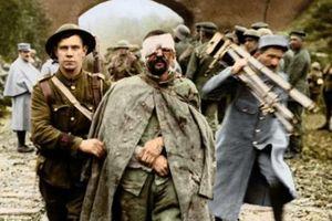 Chiến tranh Thế giới thứ nhất qua những bức ảnh màu