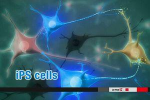 Lần đầu tiên cấy tế bào iPS vào não để điều trị bệnh Parkinson