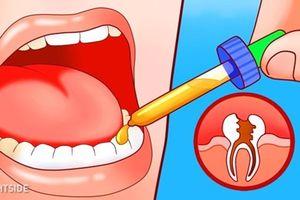 10 mẹo giảm đau hiệu quả khi mọc răng khôn