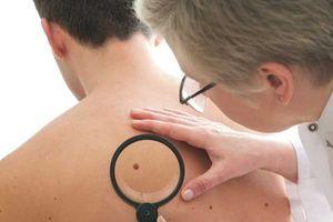 Đàn ông tử vong vì ung thư da ngày càng tăng