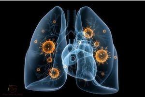 Bệnh lao phổi có nguy hiểm không? Nguyên nhân, triệu chứng và cách chữa bằng Đông Y