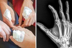 Người Thụy Điển đang 'cải tạo' bàn tay của họ, cảnh tượng có thể khiến bạn thấy 'sờ sợ'