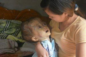 LD13112018: Xót xa bé gái 4 tuổi bị ung thư não giai đoạn cuối