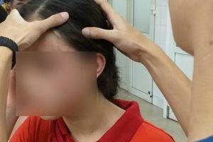Nữ sinh lớp 9 ở Hà Nội tố bị vợ hai của bố đập đầu, đánh tới mức phải nhập viện