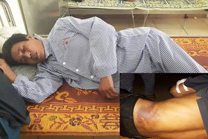Trưởng thôn bị đánh mẻ xương cánh tay vì… ngăn trâu bò thả rông