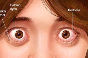 Người phụ nữ bỗng nhiên... lác mắt không rõ nguyên nhân