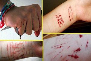Hình ảnh đáng sợ: Học sinh tự hủy hoại bản thân, rạch nát tay chân mình