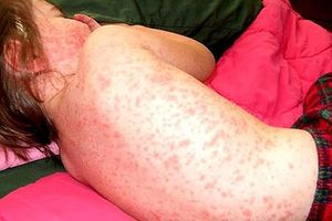 Cảnh giác những căn bệnh đặc biệt nguy hiểm do bị muỗi đốt