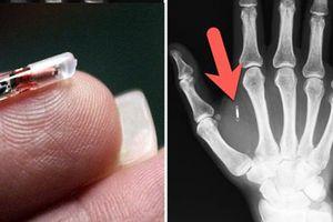 Anh 'nóng' vì tin nhiều công ty muốn cấy microchip vào cơ thể nhân viên