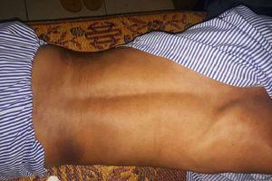 Hà Tĩnh: Ngăn trâu bò thả rông, trưởng thôn bị đánh biến dạng xương sườn