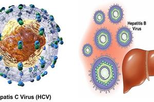 Bệnh viêm gan: Không thể chủ quan