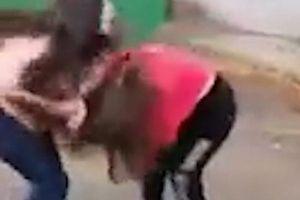 Nga: Nữ sinh bị 'nhóm bạn ghen tuông' đánh dã man đến nỗi khó có con