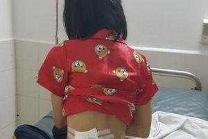 Công an Phú Yên trần tình vụ một phụ nữ bị trúng đạn cao su từ CSGT