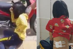 Phú Yên: Công an xác nhận cô gái trúng đạn từ súng cao su của CSGT